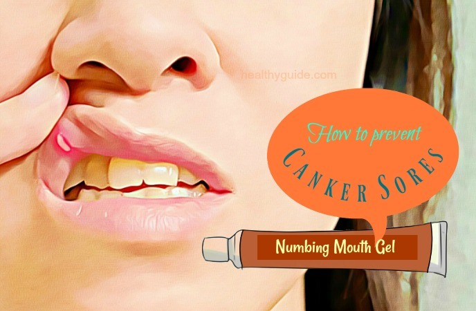 how to prevent canker sores