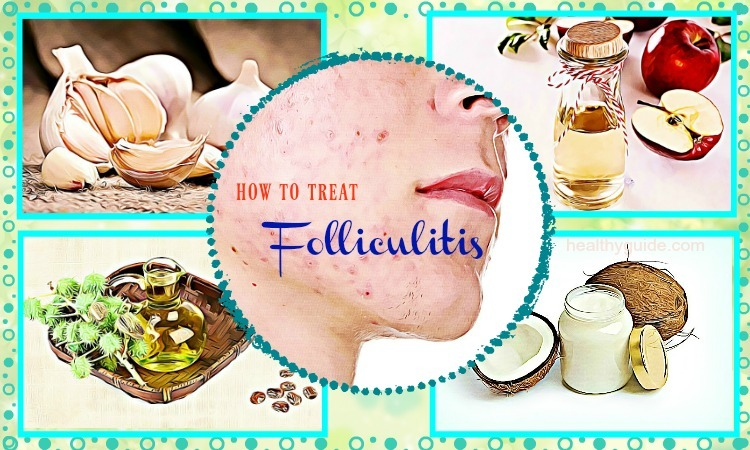 30 Tips How to Treat Folliculitis on Face and Scalp