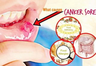 What Causes Canker Sores on Gum And in the Throat – Top 17 Causes
