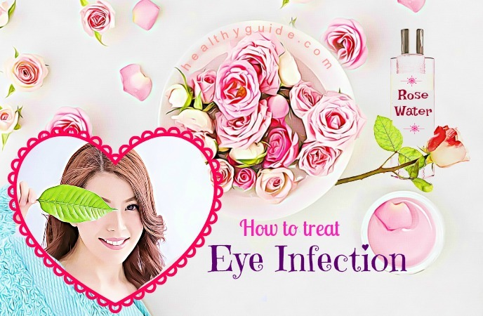 how to treat eye infection