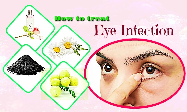 Top 33 Tips How to Treat Eye Infection Naturally at Home