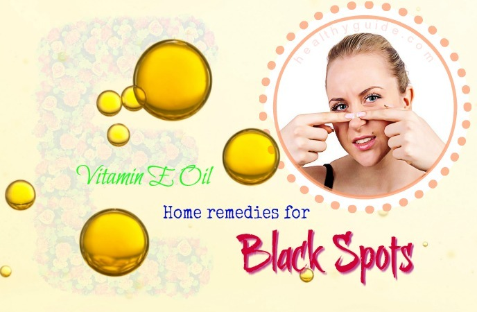 home remedies for black spots