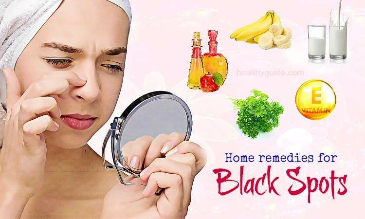 30 Best Natural Home Remedies for Black Spots on Face and Nose