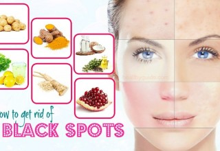 49 Tips How to Get Rid of Black Spots on Face, Nose, Neck, Legs, & Back