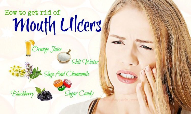 48 Tips How to Get Rid of Mouth Ulcers Pain on Throat, Gums, Tongue, & Lips