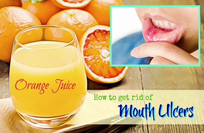 how to get rid of mouth ulcers
