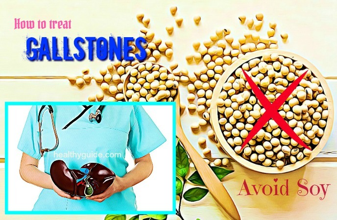 how to treat gallstones