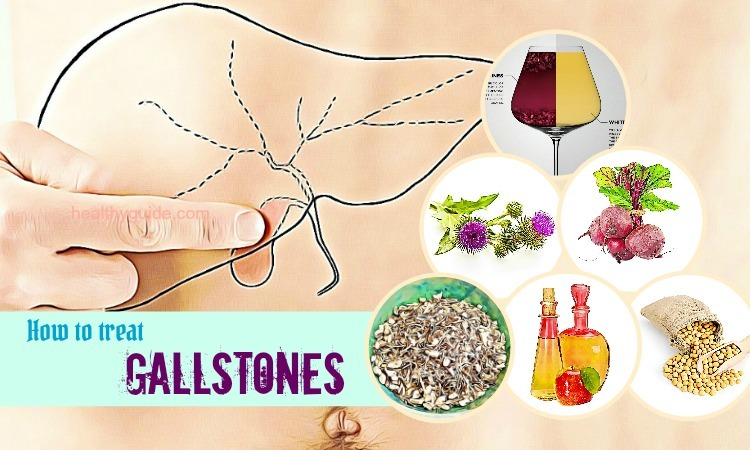 44 Tips How to Treat Gallstones Pain when Pregnant Naturally at Home