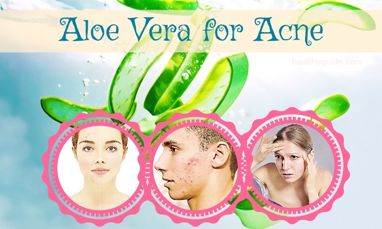 29 Uses of Aloe Vera for Acne Scars, Redness, Blemishes & Pores