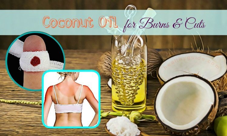 Top 7 Simple Ways To Use Coconut Oil For Burns And Cuts On Face And Hands