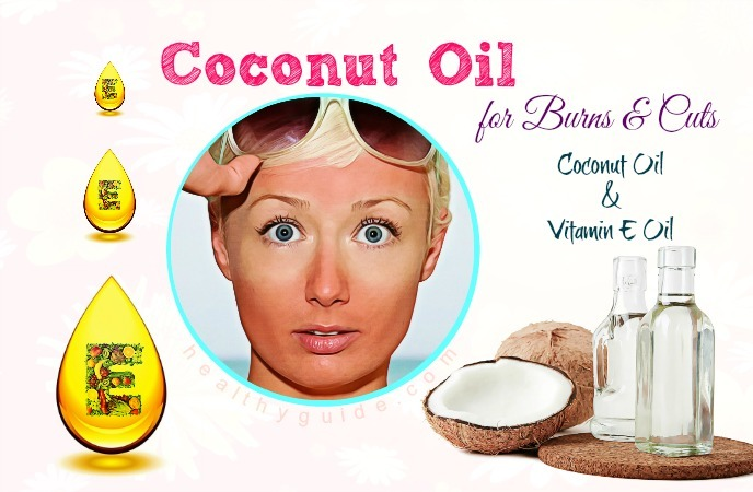 coconut oil for burns and cuts