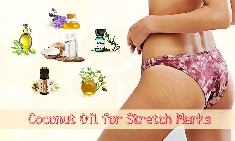 Top 27 Ways To Use Coconut Oil For Stretch Marks On Breasts During Pregnancy