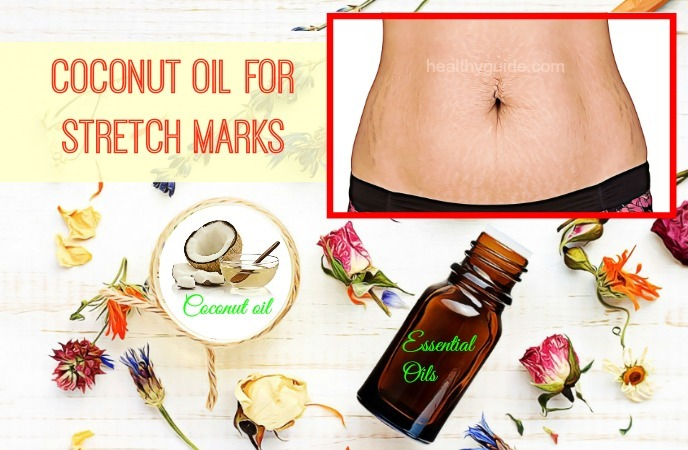 coconut oil for stretch marks