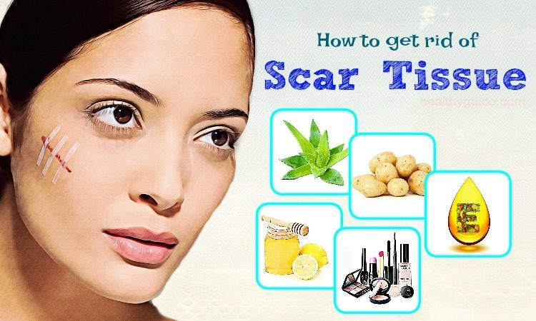 How To Get Rid Of Scar Tissue On Face And Lip- Top 28 Simple Methods