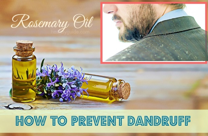 how to prevent dandruff