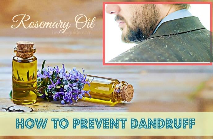 how to prevent dandruff