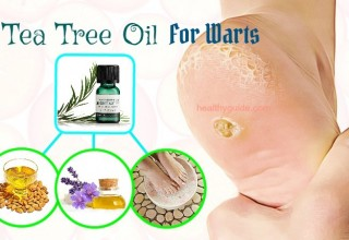 24 Ways to Use Tea Tree Oil for Warts on Face, Hand, Scalp, Neck & Finger