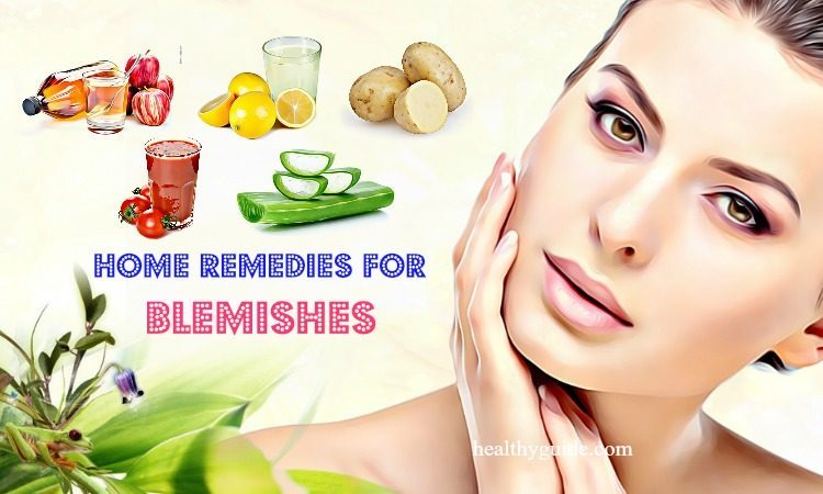 11 Natural Home Remedies for Blemishes on Face, Cheeks, Nose, & Legs