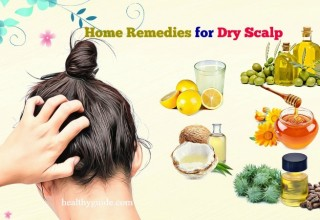 44 Best Home Remedies for Dry Scalp Patches and Scalp Itching in Winter