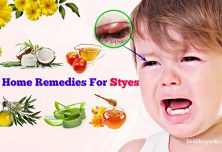 49 Home Remedies for Styes on Upper, Lower Eyelid in Babies, Toddlers, Adults