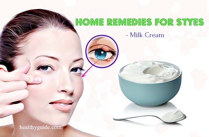 home remedies for styes