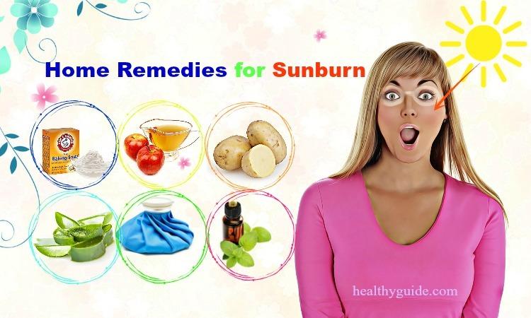 26 Best Natural Home Remedies for Sunburn Peeling on Face, Back, & Hands