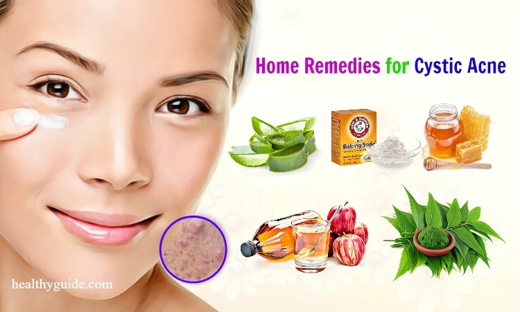 18 Best Home Remedies for Cystic Acne On Face, Neck, Nose, Cheek, Forehead