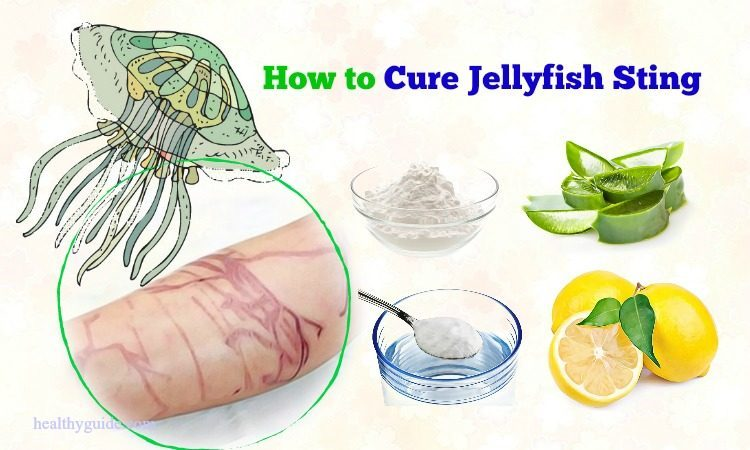 16 Tips How to Cure Jellyfish Sting Rash & Itching Naturally after a Week