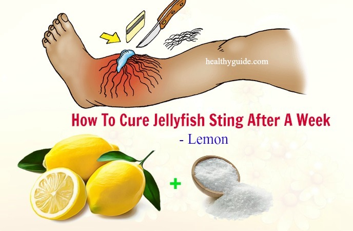 how to cure jellyfish sting