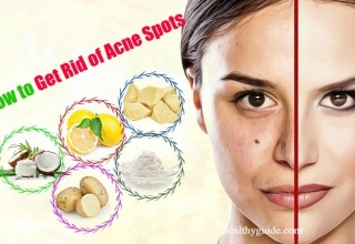 13 Tips How to Get Rid of Acne Spots on Face, Back, Arms, & Chest Overnight