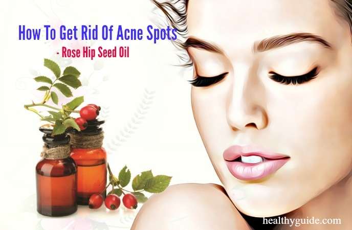 how to get rid of acne spots