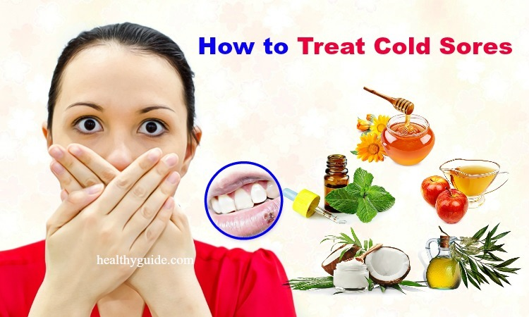 27 Tips How to Treat Cold Sores in Mouth, Nose & on Lips, Face, Tongue