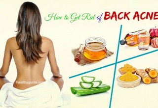 10 Tips How to Get Rid of Back Acne Spots & Scars Fast Overnight at Home