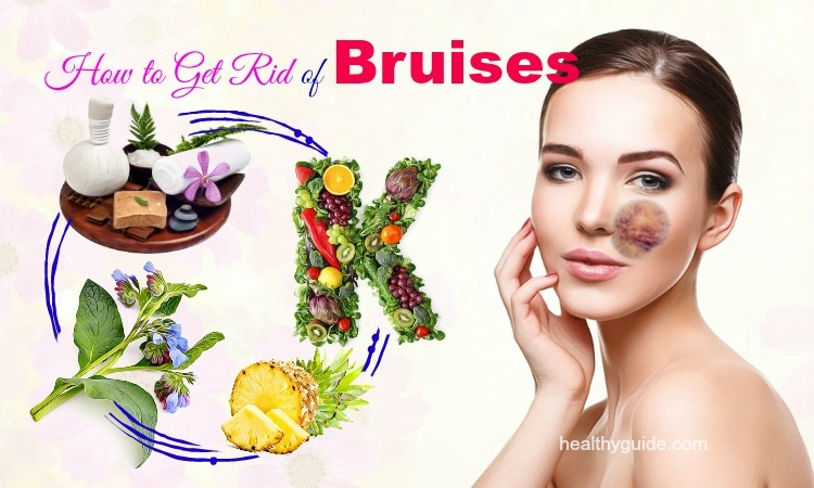 22 Tips How to Get Rid of Bruises on Lips, Face, Shins, and Hands Fast