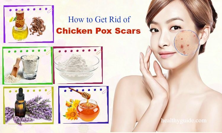 23 Tips How to Get Rid of Chicken Pox Scars on Face Fast, Naturally in a Week
