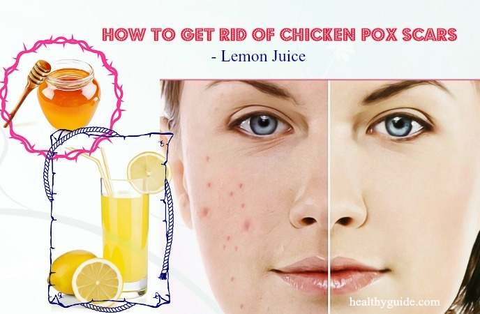 how to get rid of chicken pox scars