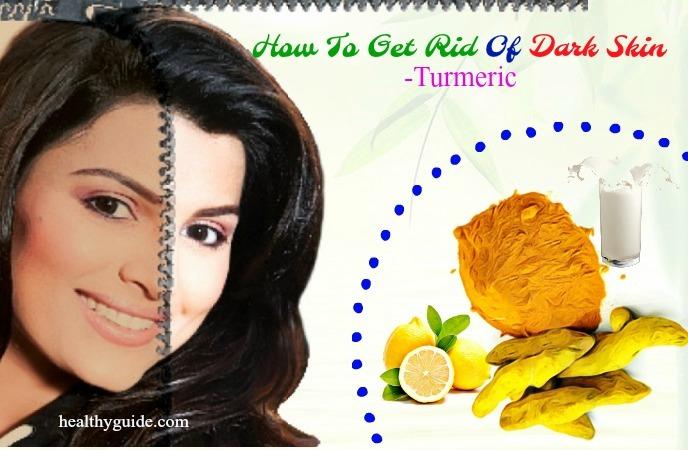 how to get rid of dark skin