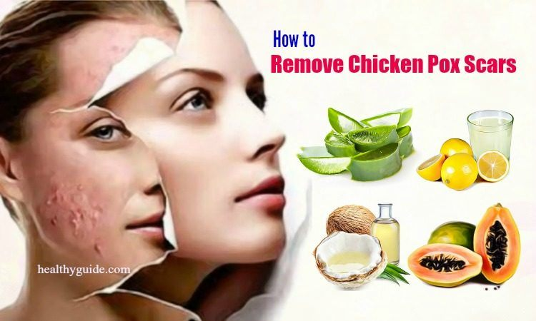 20 Tips How to Remove Chicken Pox Scars on Face Skin Naturally after a Week