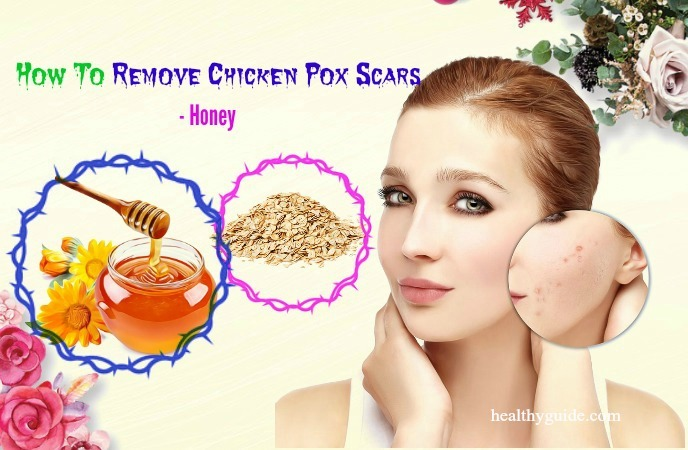 how to remove chicken pox scars