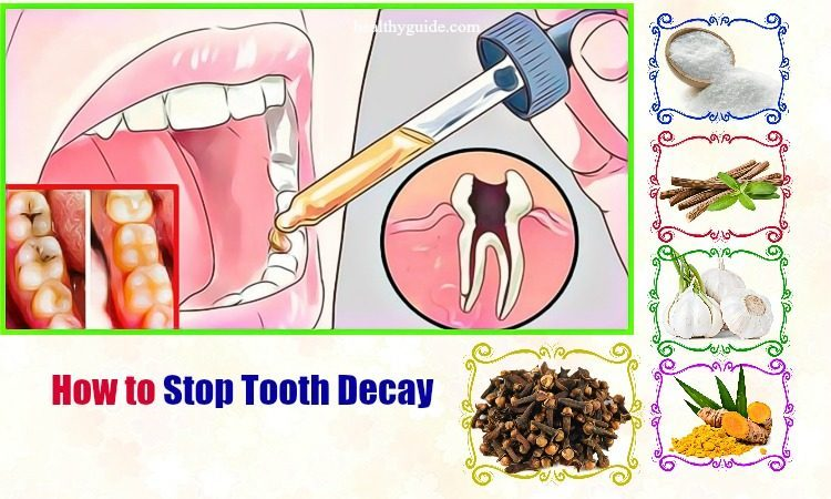 10 Tips How to Stop Tooth Decay Pain at Gum Line in Babies, Toddlers, Adults
