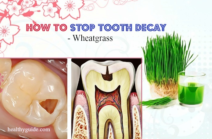 how to stop tooth decay