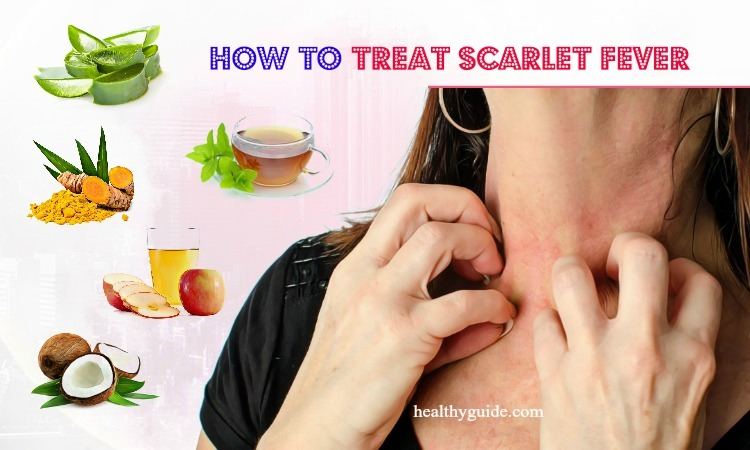 10 Tips How to Treat Scarlet Fever Rash, Itch, Peeling in Babies & Adults