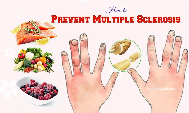 12 Tips How to Prevent Multiple Sclerosis Symptoms & Pain from Happening