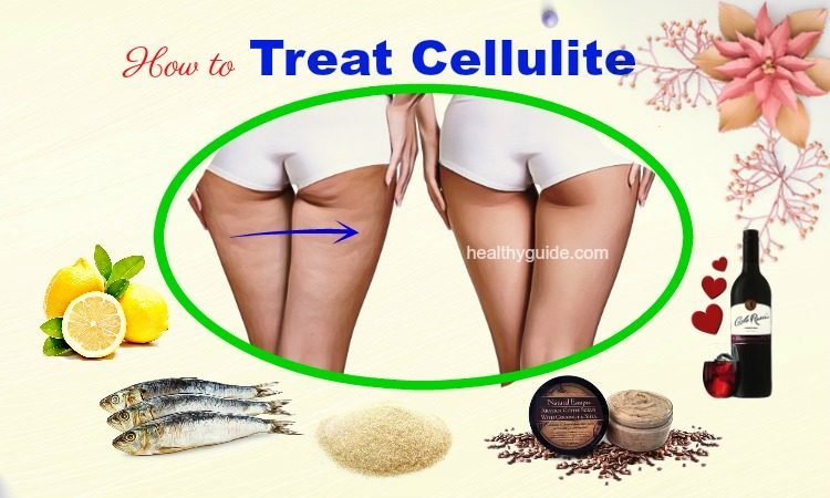 10 Tips How to Treat Cellulite on Legs, Thighs, Arms, & Buttocks at Home