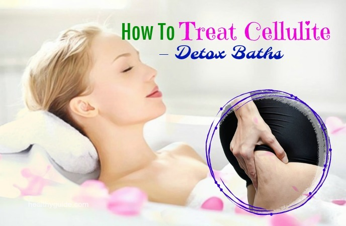 how to treat cellulite