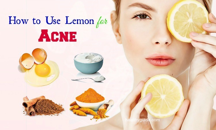 30 Tips How to Use Lemon for Acne and Pimples Scars, Spots Removal Overnight