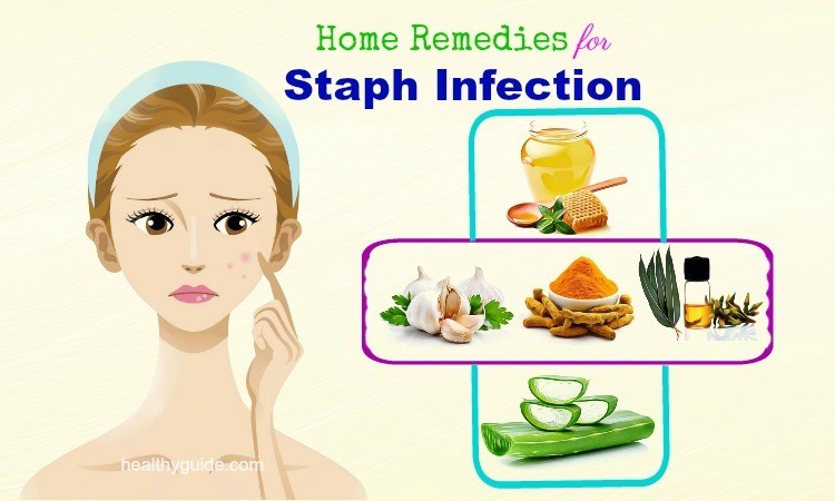 14 Home Remedies for Staph Infection Pain on Face, Scalp, Buttocks, & in Nose