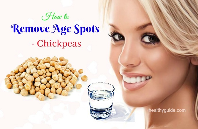 how to remove age spots