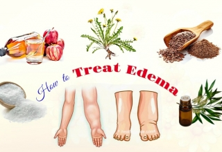 27 Tips How to Treat Edema in Face, Hands, Arms, Feet, Legs, & Knee Naturally
