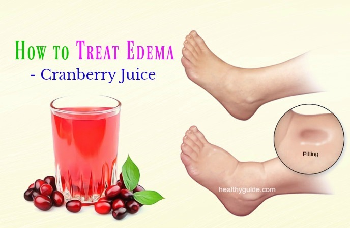 how to treat edema